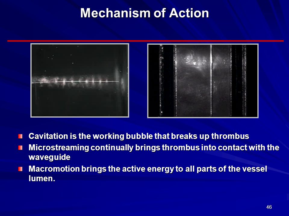 Mechanism of Action Cavitation is the working bubble that breaks up thrombus.