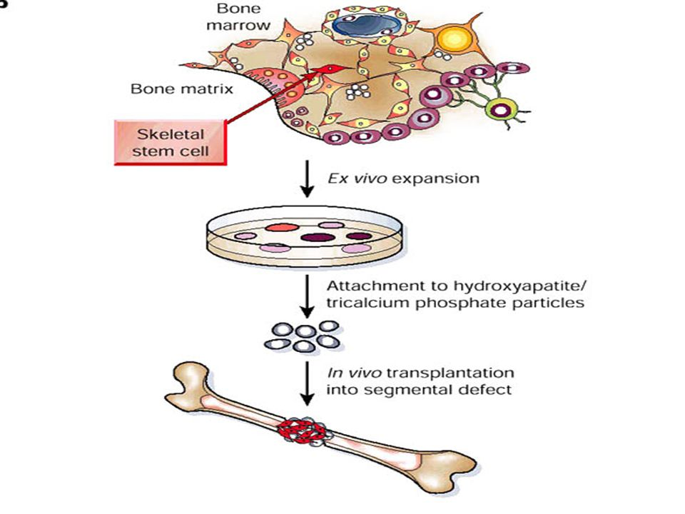 Bone regeneration requires ex vivo expansion of marrow-derived skeletal stem cells and their attachment to three-dimensional scaffolds, such as particles of a hydroxyapatite/tricalcium phosphate ceramic.