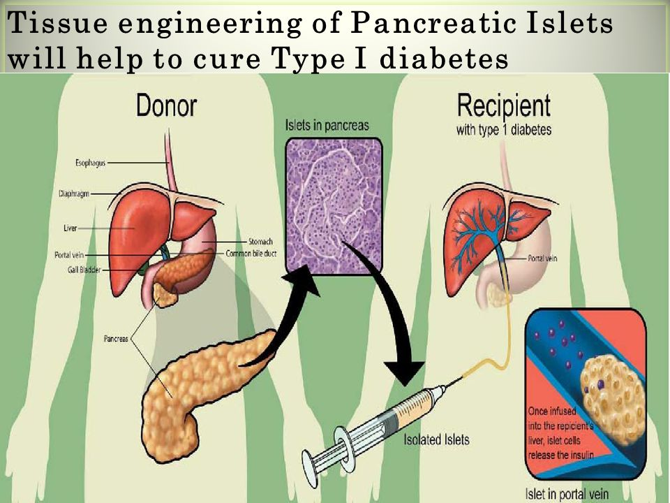Tissue engineering of Pancreatic Islets will help to cure Type I diabetes