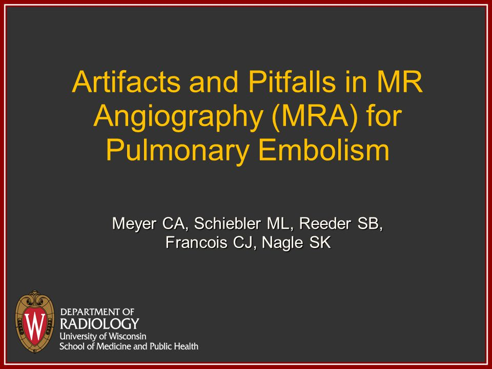 Artifacts and Pitfalls in MR Angiography (MRA) for Pulmonary Embolism Meyer CA, Schiebler ML, Reeder SB, Francois CJ, Nagle SK