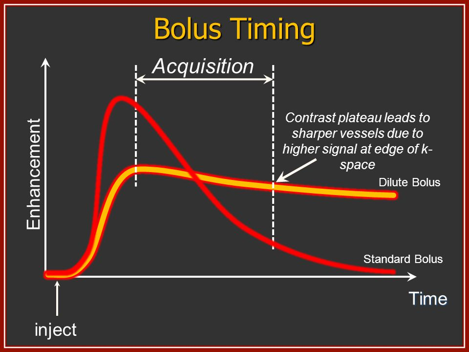 Bolus Timing Acquisition Enhancement Time inject