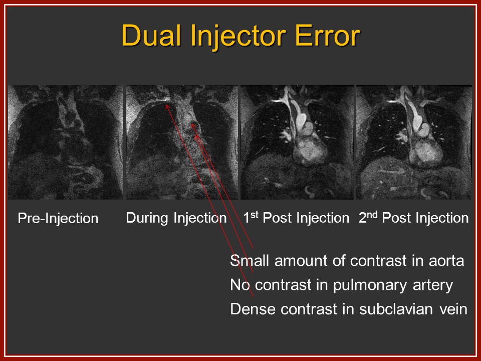 Dual Injector Error Small amount of contrast in aorta