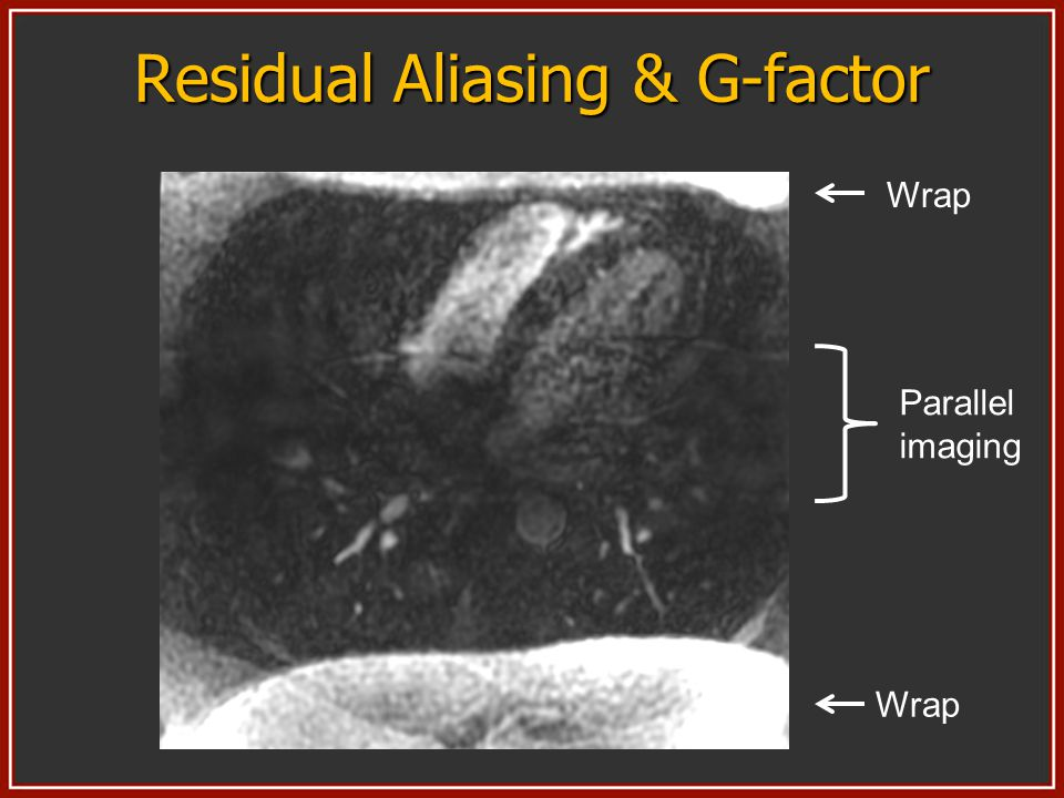 Residual Aliasing & G-factor