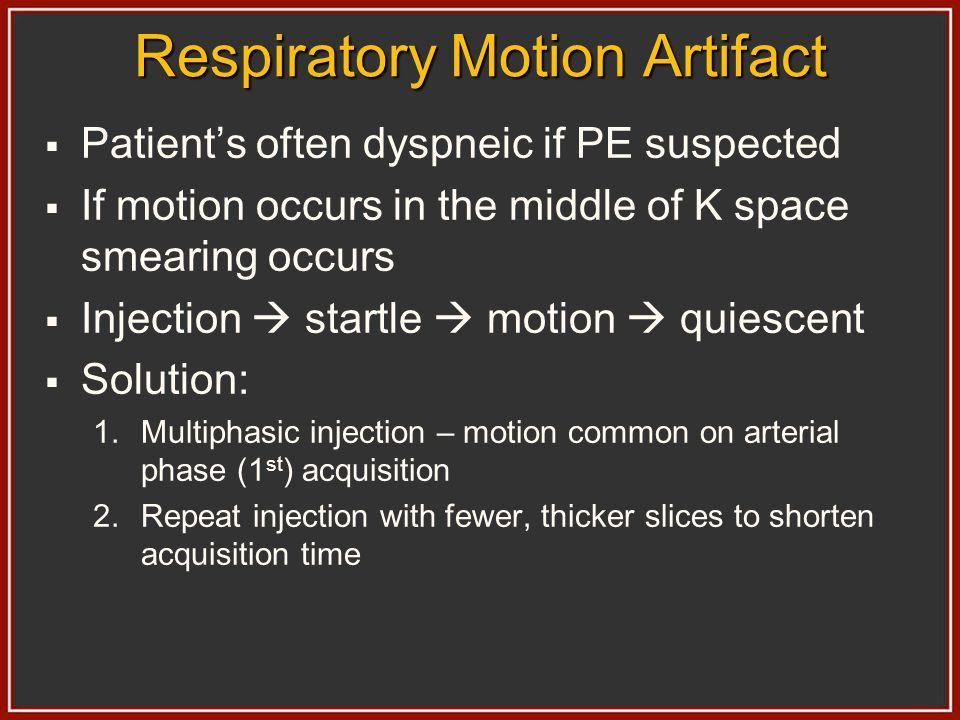 Respiratory Motion Artifact