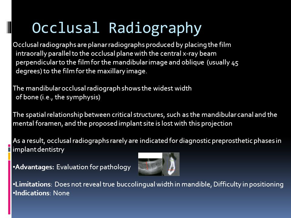 Occlusal Radiography Occlusal radiographs are planar radiographs produced by placing the film.