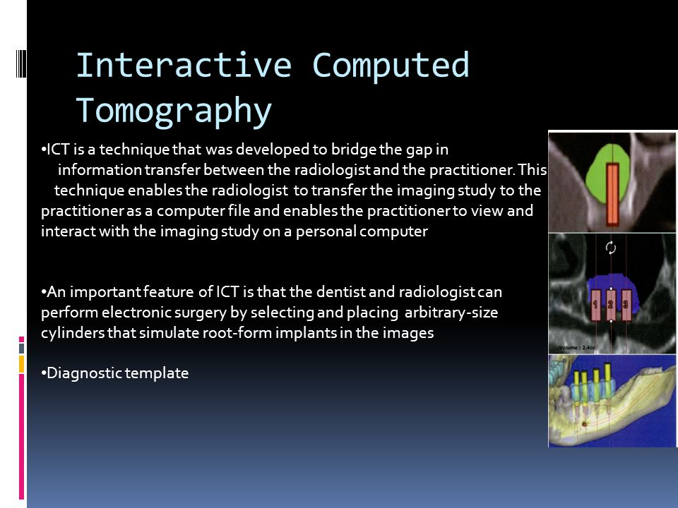 Interactive Computed Tomography