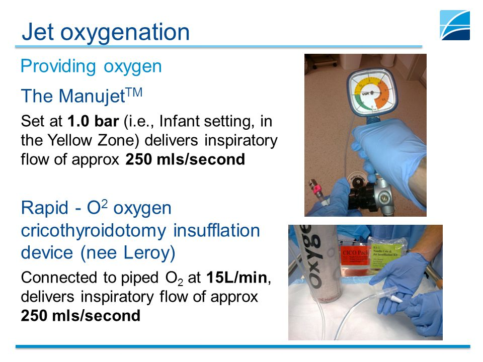 Jet oxygenation Providing oxygen The ManujetTM