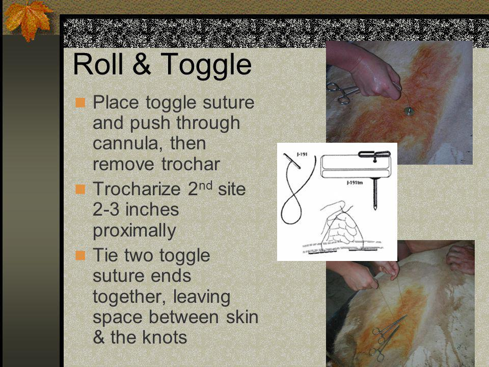 Roll & Toggle Place toggle suture and push through cannula, then remove trochar. Trocharize 2nd site 2-3 inches proximally.