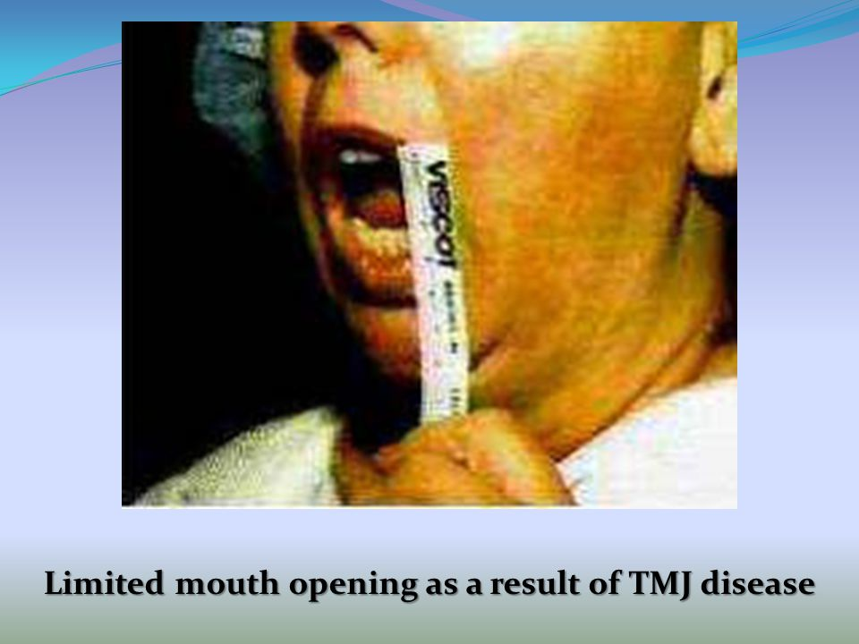 Limited mouth opening as a result of TMJ disease