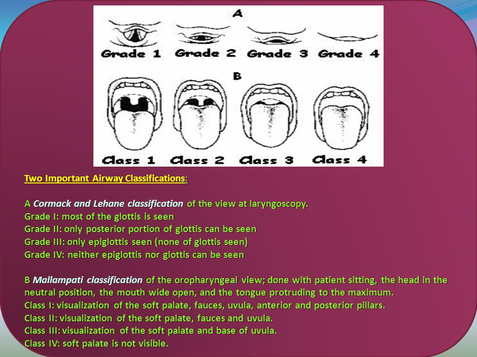 Two Important Airway Classifications: A Cormack and Lehane classification of the view at laryngoscopy.