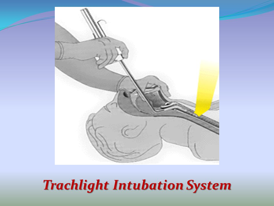 Trachlight Intubation System