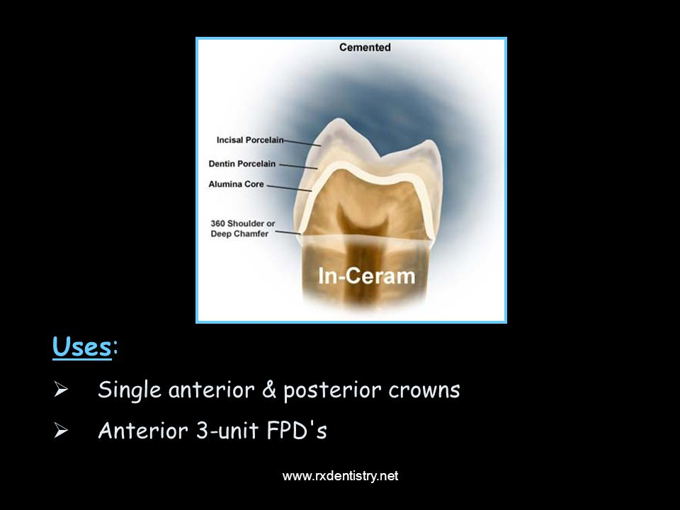 Uses: Single anterior & posterior crowns Anterior 3-unit FPD s