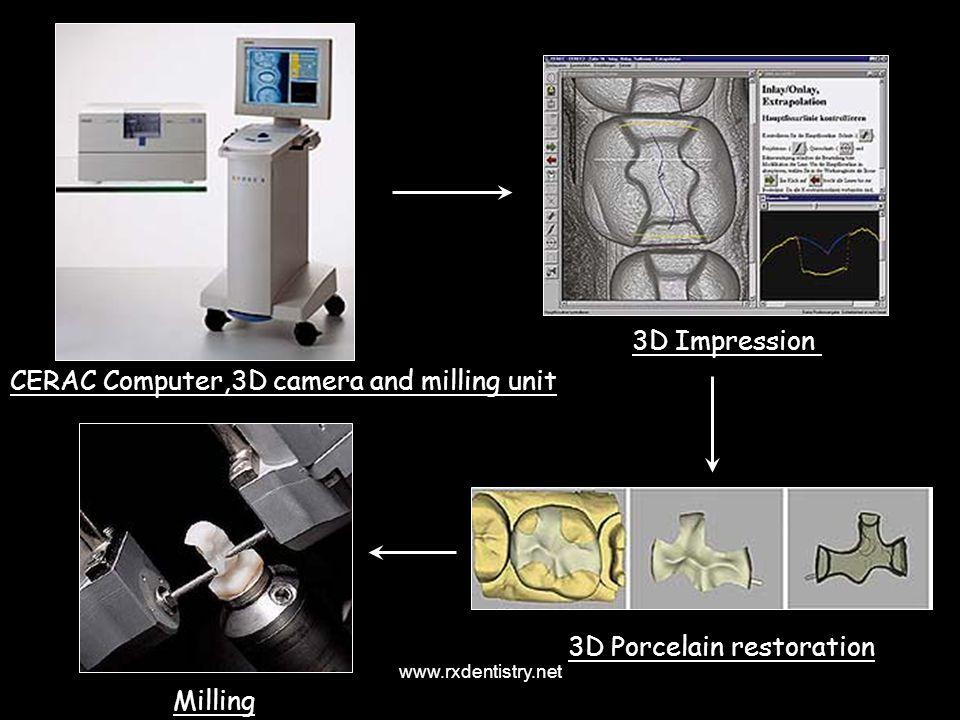 CERAC Computer,3D camera and milling unit