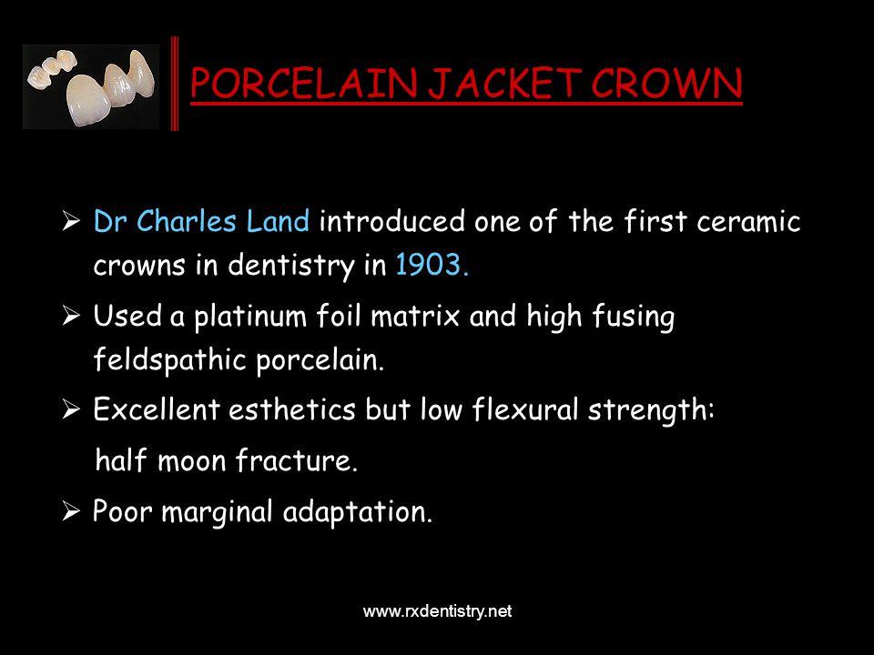 PORCELAIN JACKET CROWN