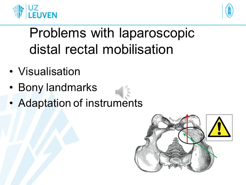 Problems with laparoscopic distal rectal mobilisation