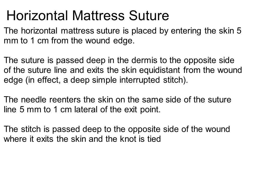 Horizontal Mattress Suture