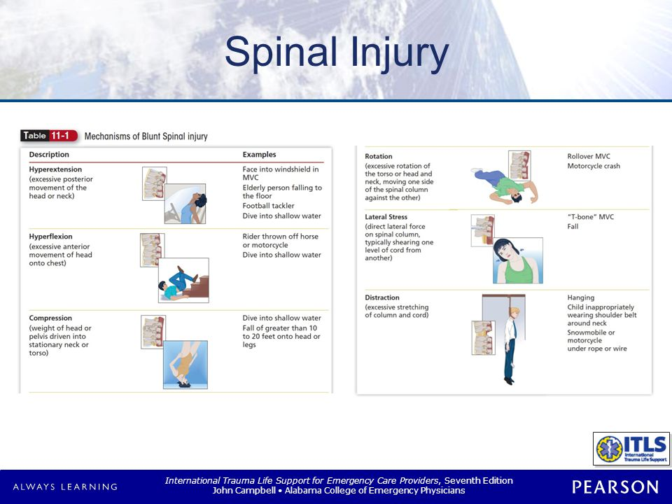 Incidence Spinal Injury