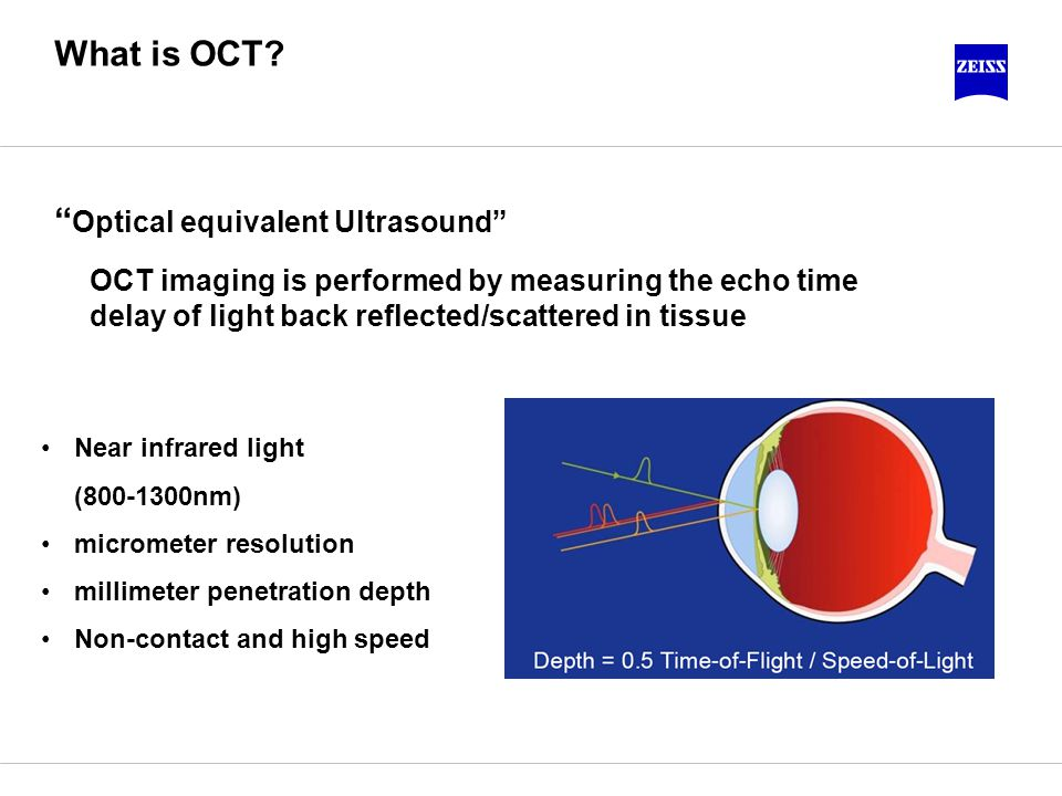 Optical equivalent Ultrasound