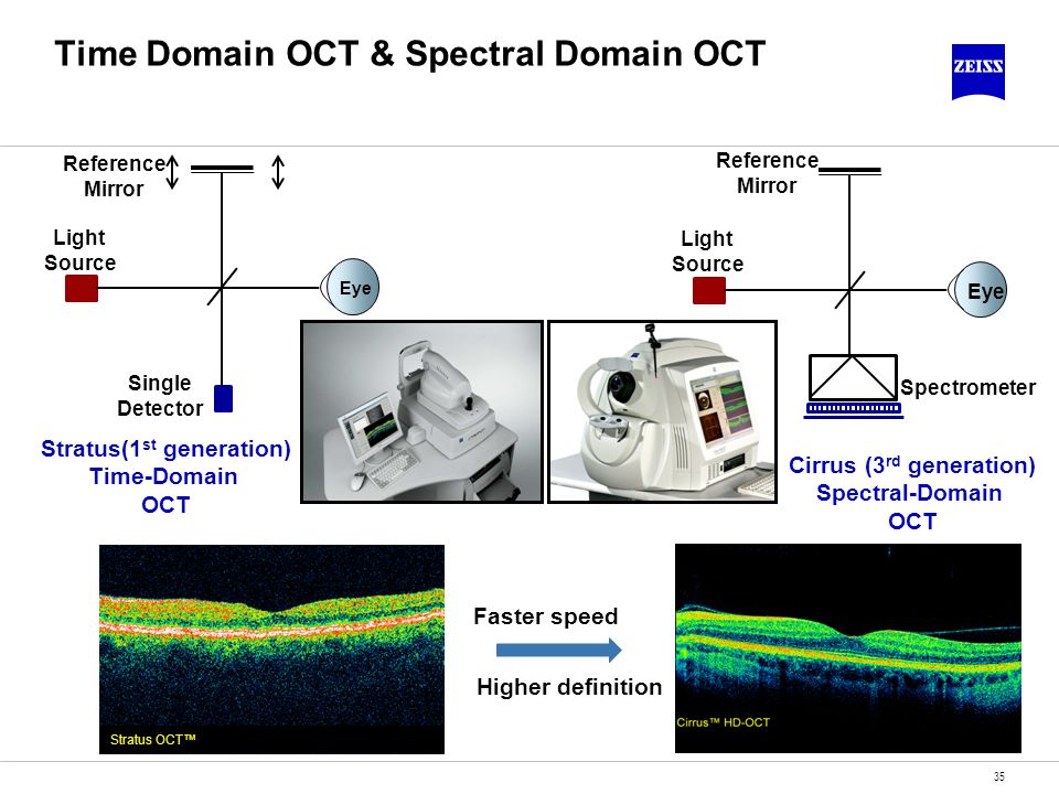Time Domain OCT & Spectral Domain OCT
