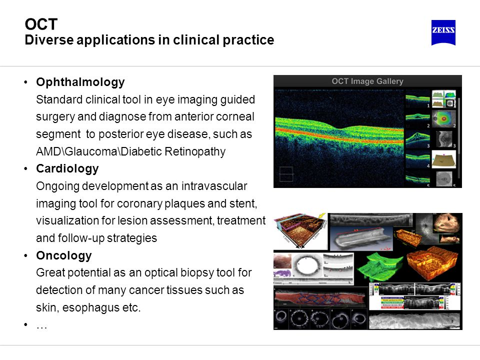 OCT Diverse applications in clinical practice