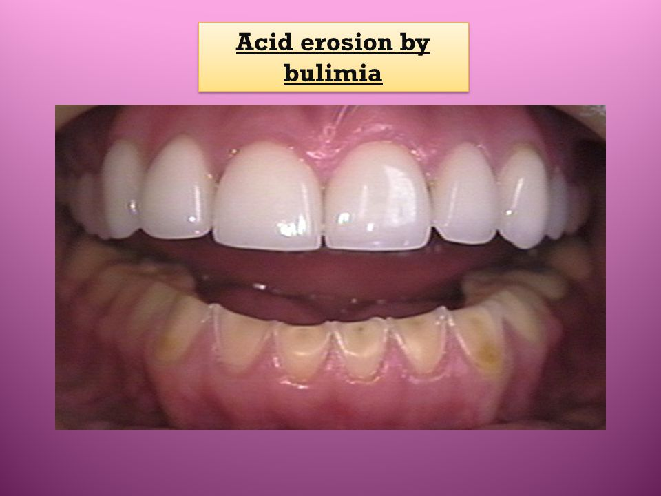 Acid erosion by bulimia