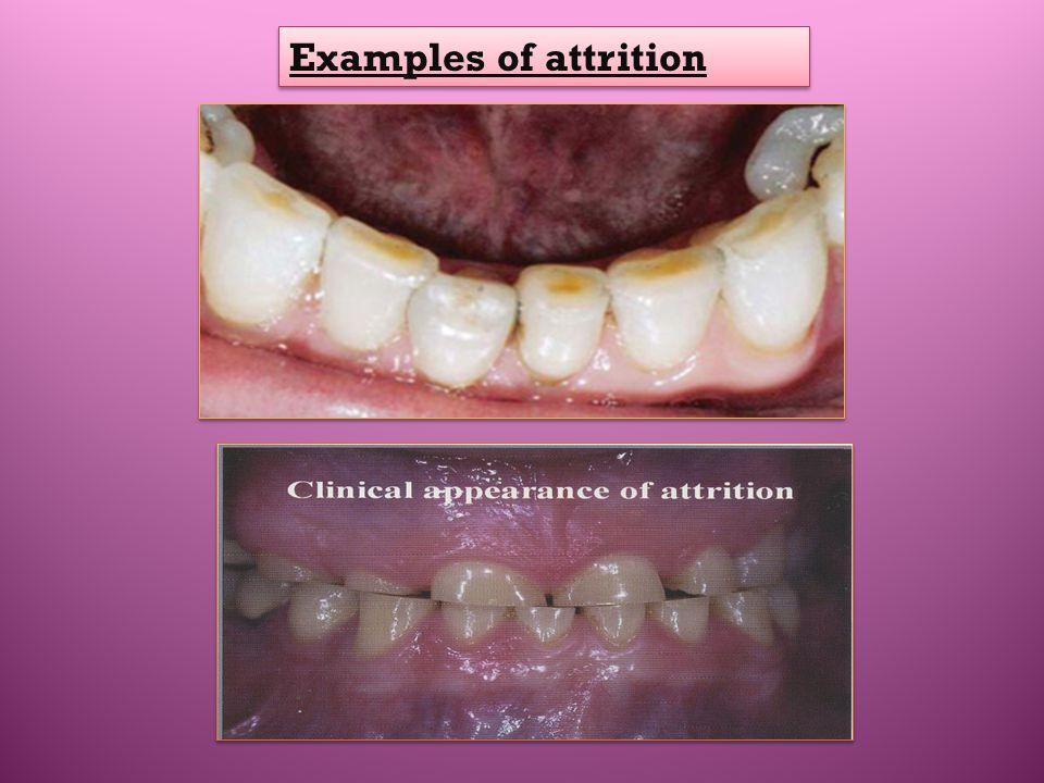 Examples of attrition