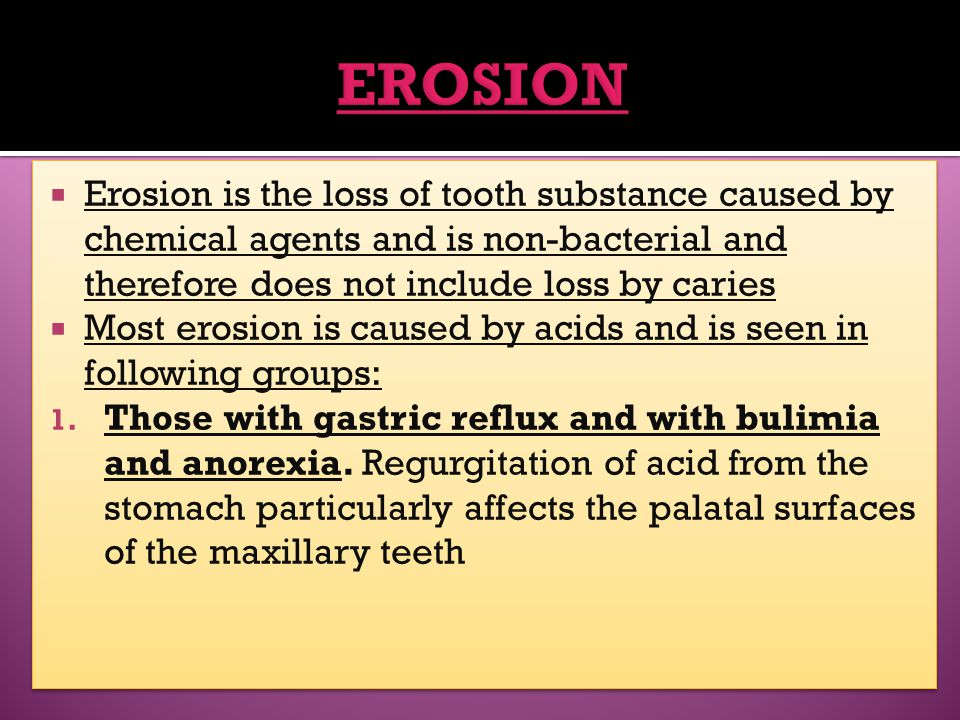 EROSION Erosion is the loss of tooth substance caused by chemical agents and is non-bacterial and therefore does not include loss by caries.