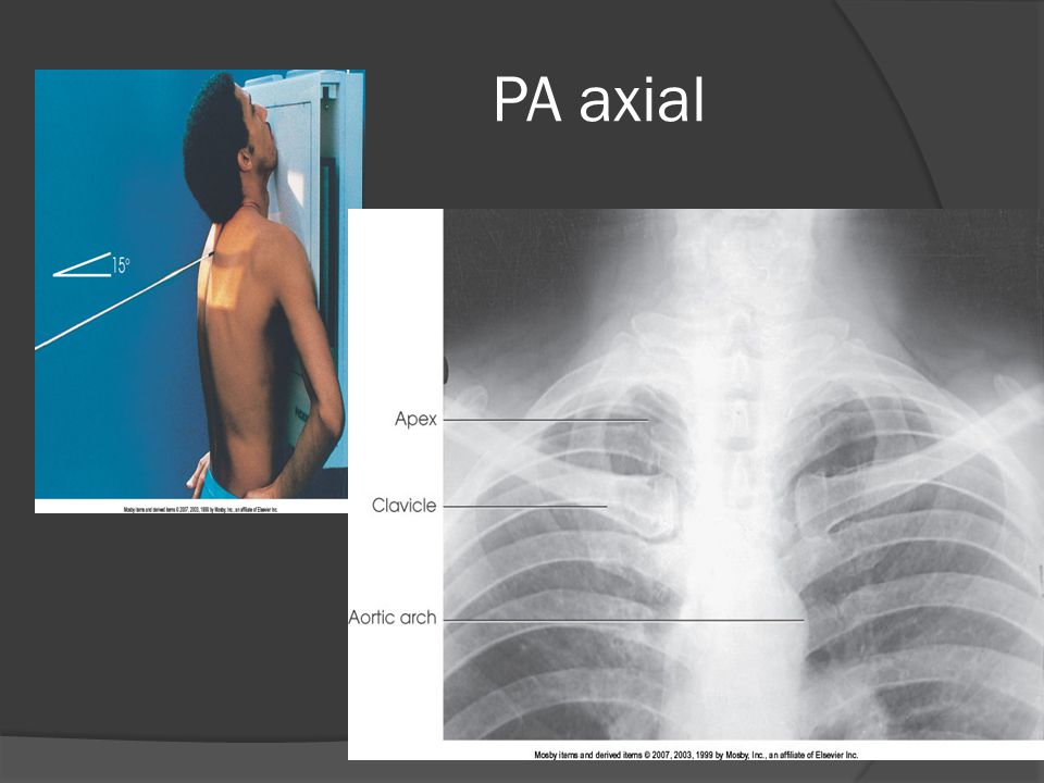 PA axial