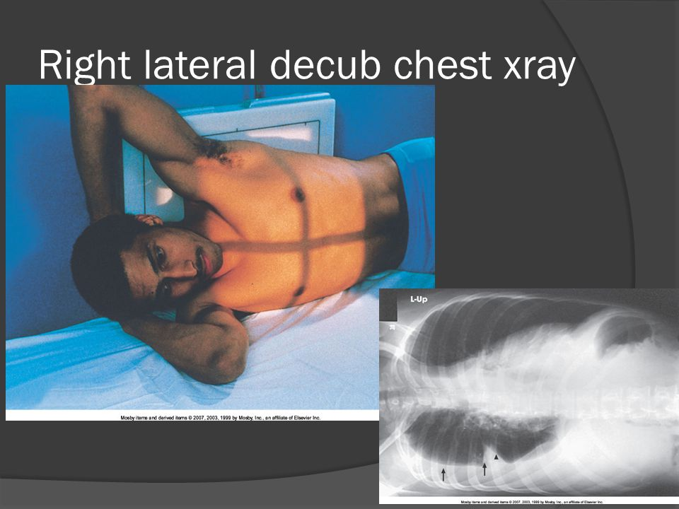Right lateral decub chest xray