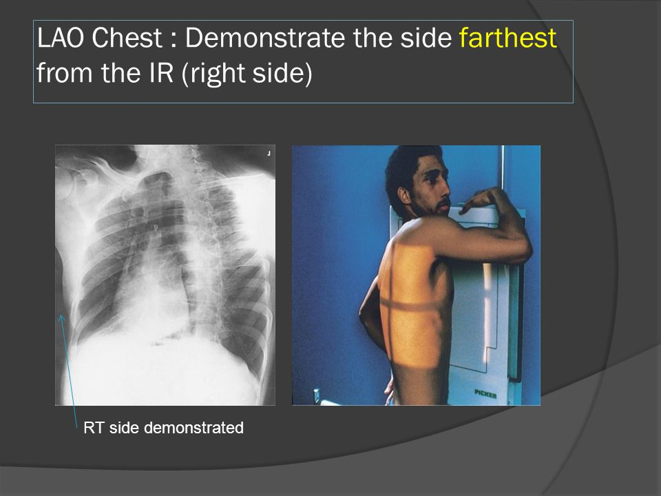 LAO Chest : Demonstrate the side farthest from the IR (right side)