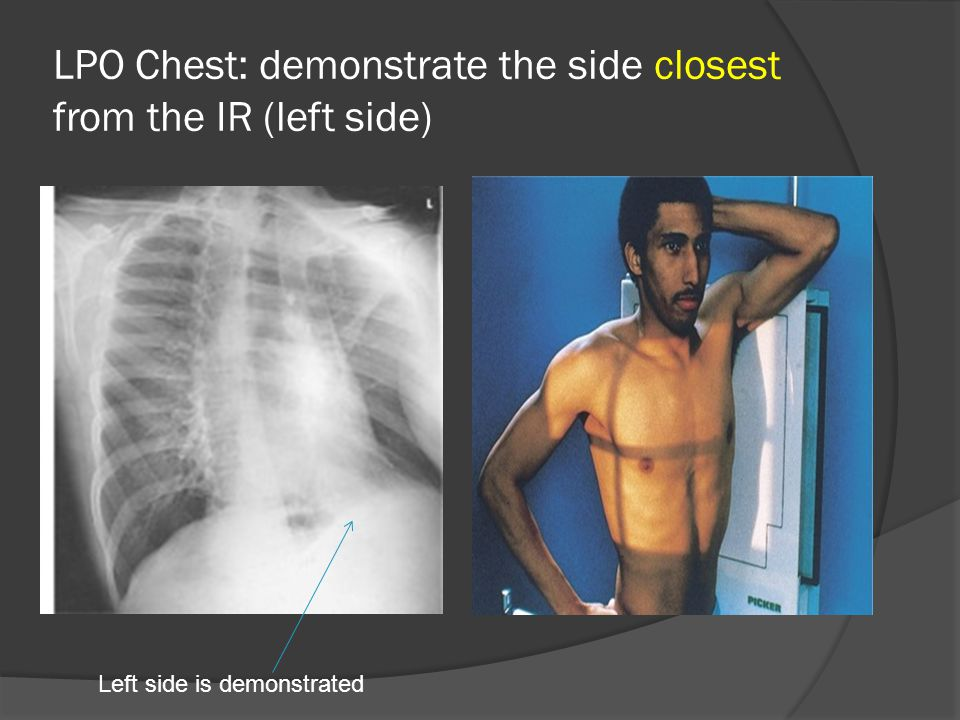 LPO Chest: demonstrate the side closest from the IR (left side)