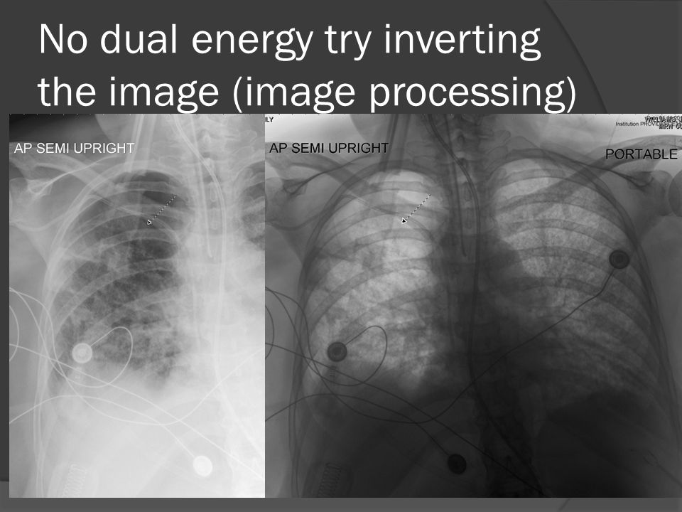 No dual energy try inverting the image (image processing)