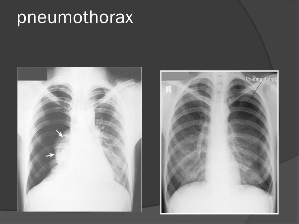 pneumothorax Can you see one area has no lung markings