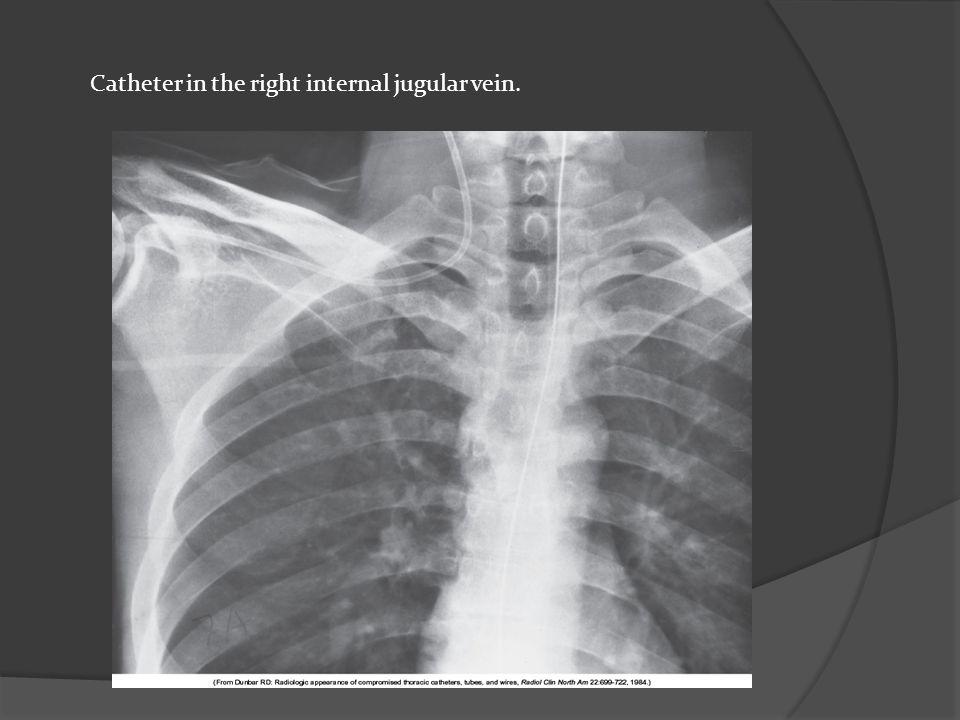 Catheter in the right internal jugular vein.