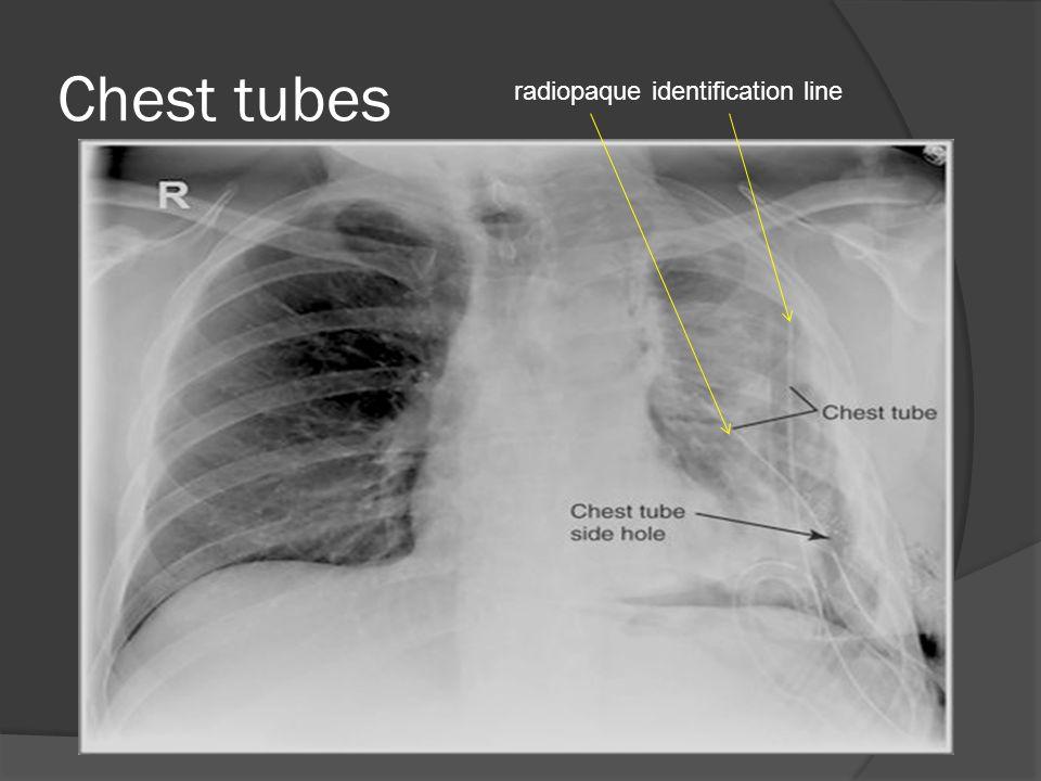 Chest tubes radiopaque identification line