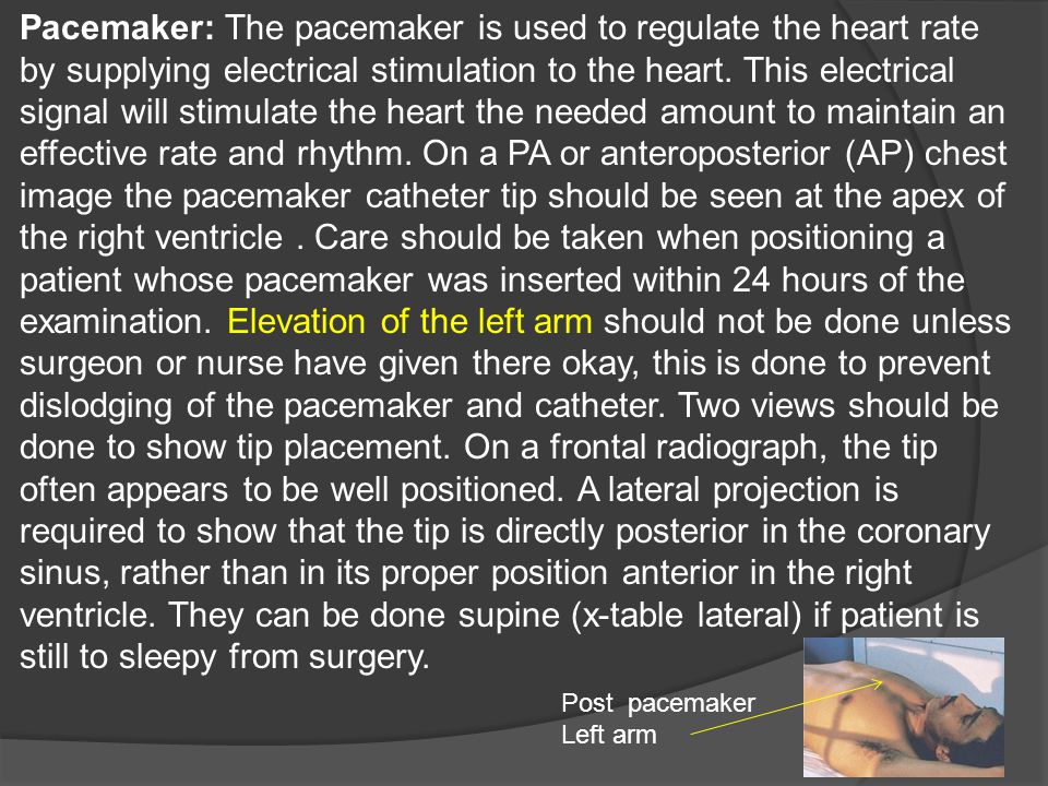Pacemaker: The pacemaker is used to regulate the heart rate by supplying electrical stimulation to the heart. This electrical signal will stimulate the heart the needed amount to maintain an effective rate and rhythm. On a PA or anteroposterior (AP) chest image the pacemaker catheter tip should be seen at the apex of the right ventricle . Care should be taken when positioning a patient whose pacemaker was inserted within 24 hours of the examination. Elevation of the left arm should not be done unless surgeon or nurse have given there okay, this is done to prevent dislodging of the pacemaker and catheter. Two views should be done to show tip placement. On a frontal radiograph, the tip often appears to be well positioned. A lateral projection is required to show that the tip is directly posterior in the coronary sinus, rather than in its proper position anterior in the right ventricle. They can be done supine (x-table lateral) if patient is still to sleepy from surgery.