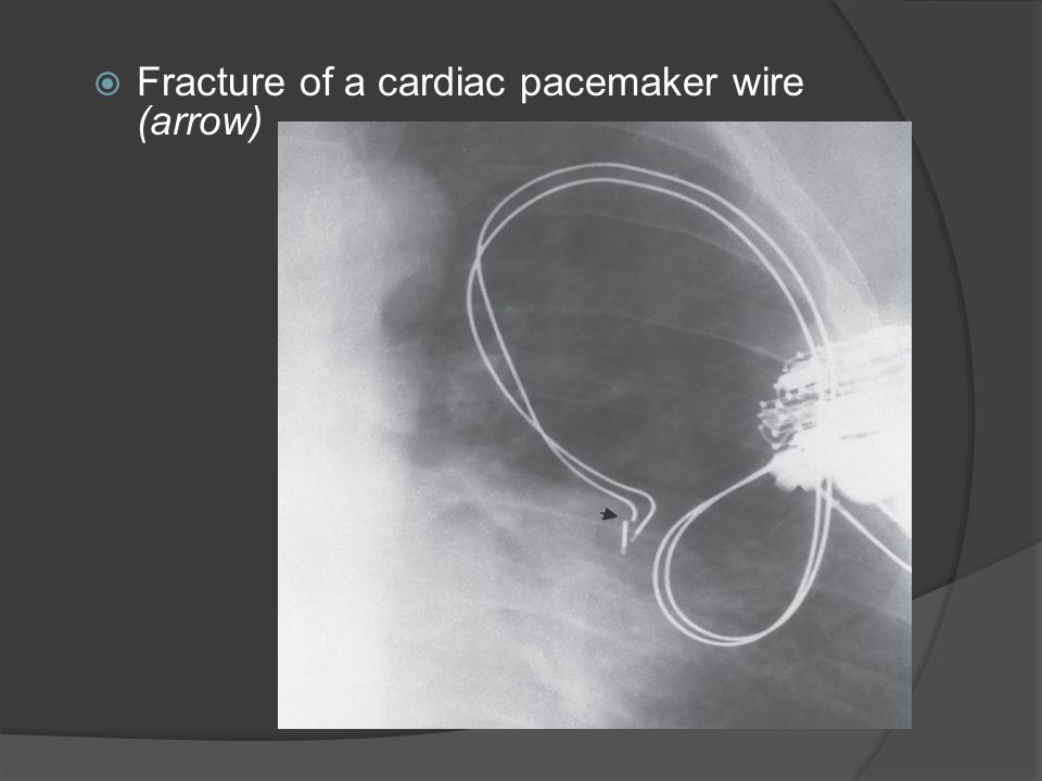 Fracture of a cardiac pacemaker wire (arrow)