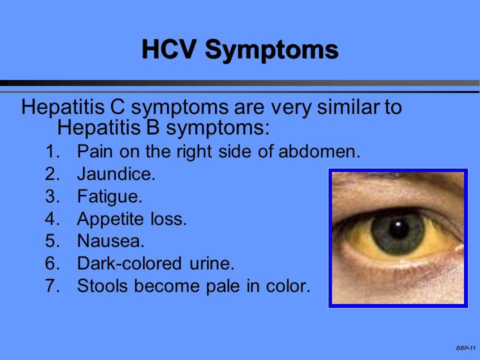 HCV Symptoms Hepatitis C symptoms are very similar to Hepatitis B symptoms: Pain on the right side of abdomen.