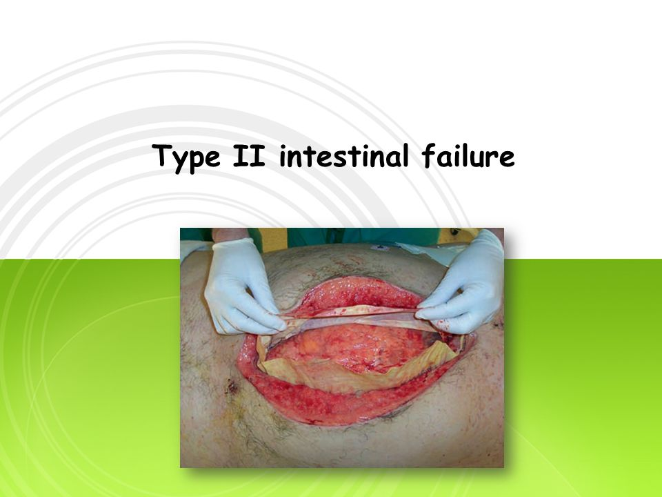 Type II intestinal failure