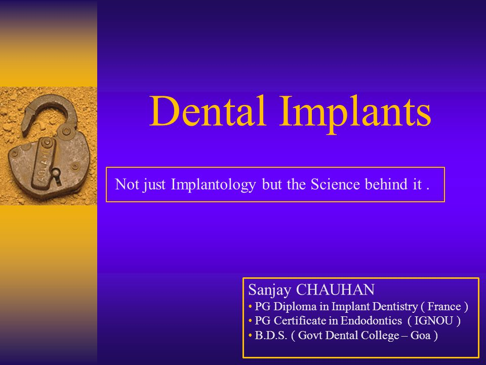 Dental Implants Not just Implantology but the Science behind it .
