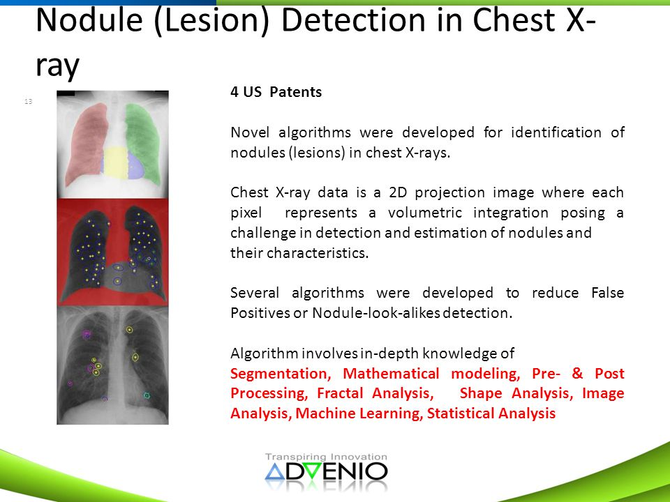 Nodule (Lesion) Detection in Chest X-ray