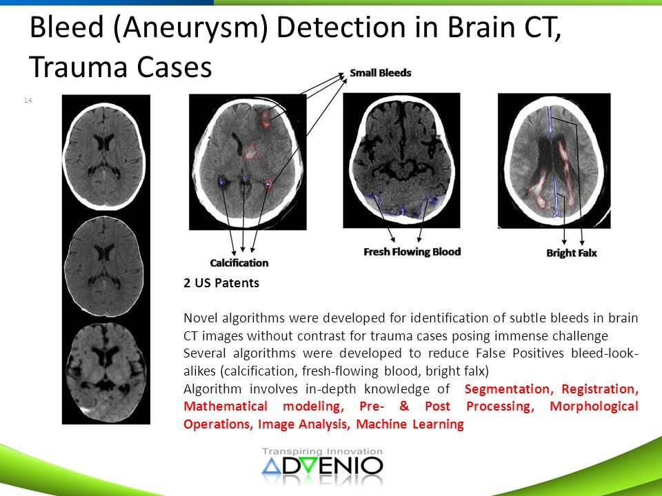 Bleed (Aneurysm) Detection in Brain CT, Trauma Cases