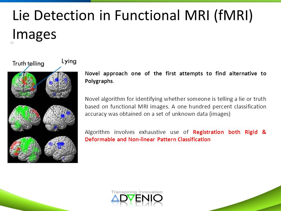 Lie Detection in Functional MRI (fMRI) Images