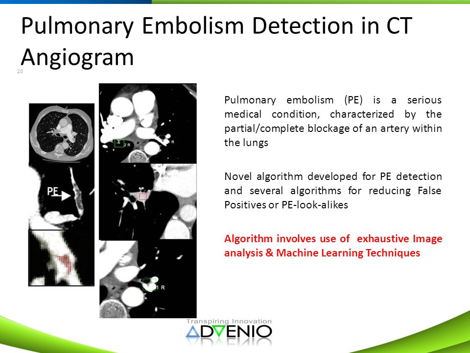 Pulmonary Embolism Detection in CT Angiogram