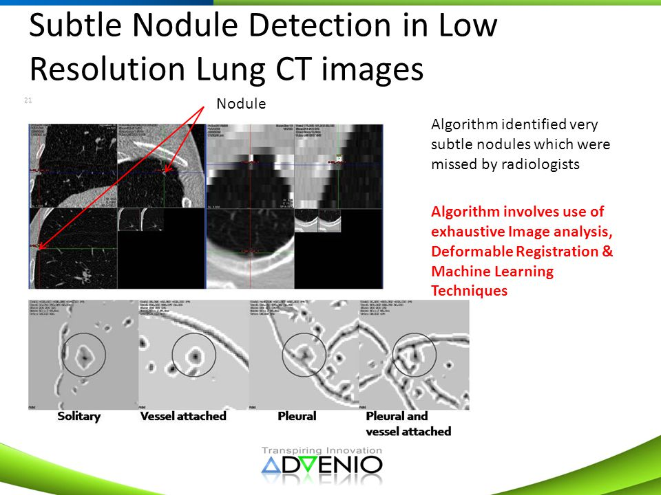 Subtle Nodule Detection in Low Resolution Lung CT images