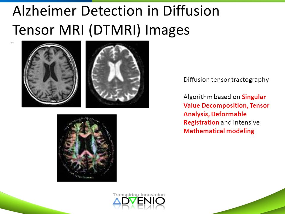 Alzheimer Detection in Diffusion Tensor MRI (DTMRI) Images
