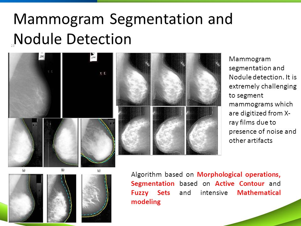 Mammogram Segmentation and Nodule Detection
