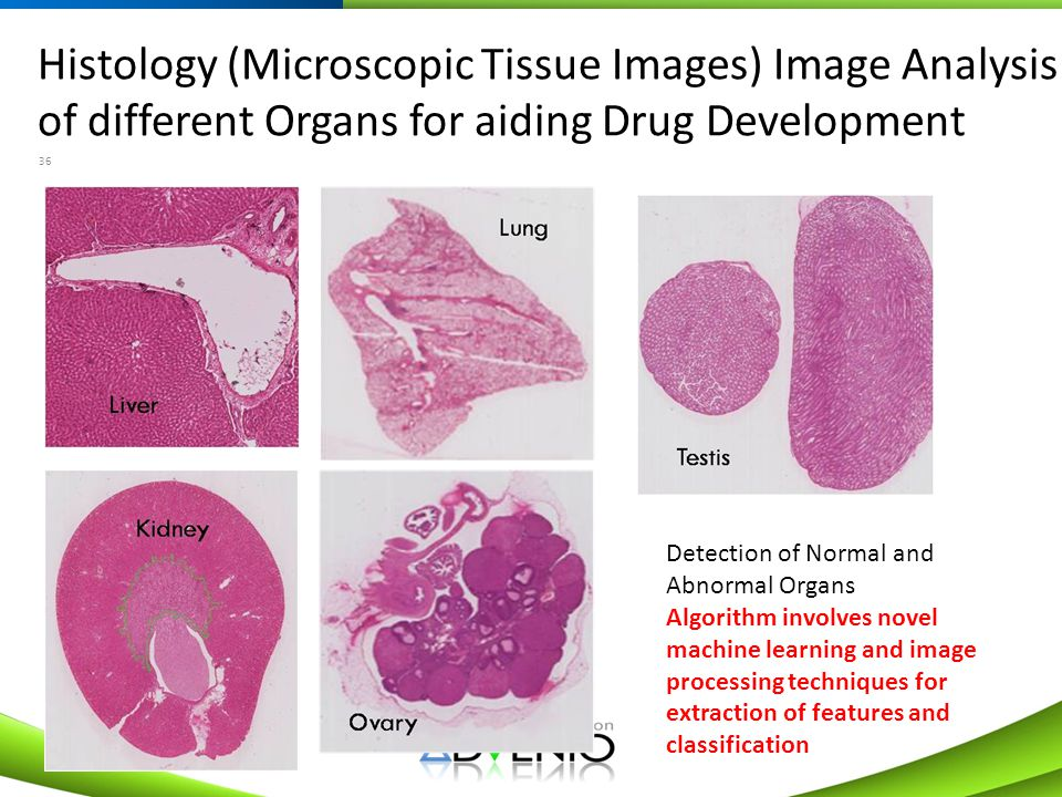 Histology (Microscopic Tissue Images) Image Analysis of different Organs for aiding Drug Development