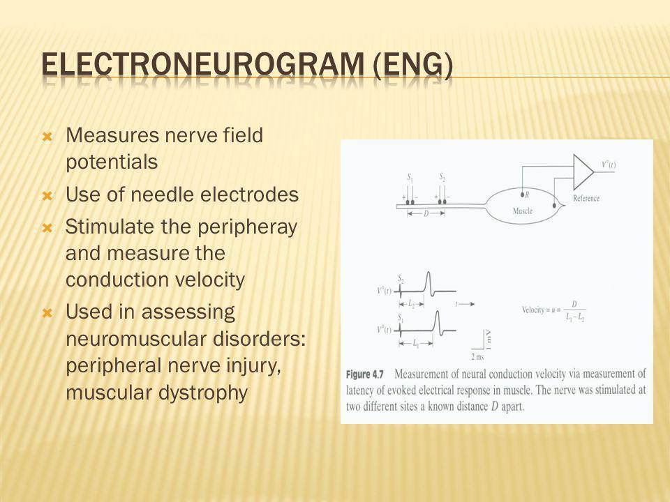 Electroneurogram (ENG)