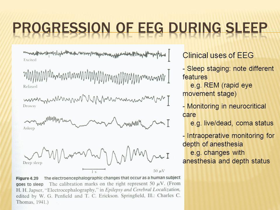 Progression of EEG during Sleep